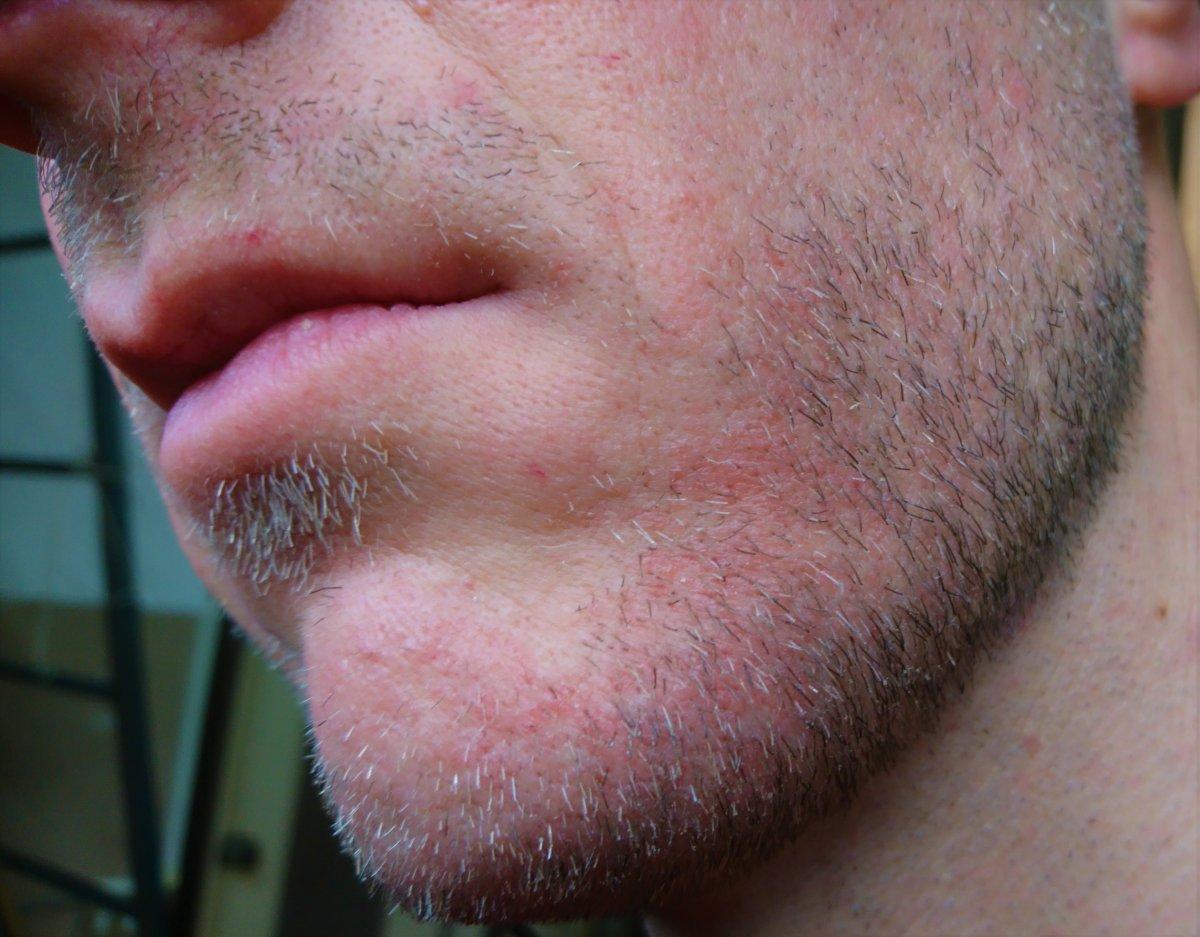 dermatite barba)