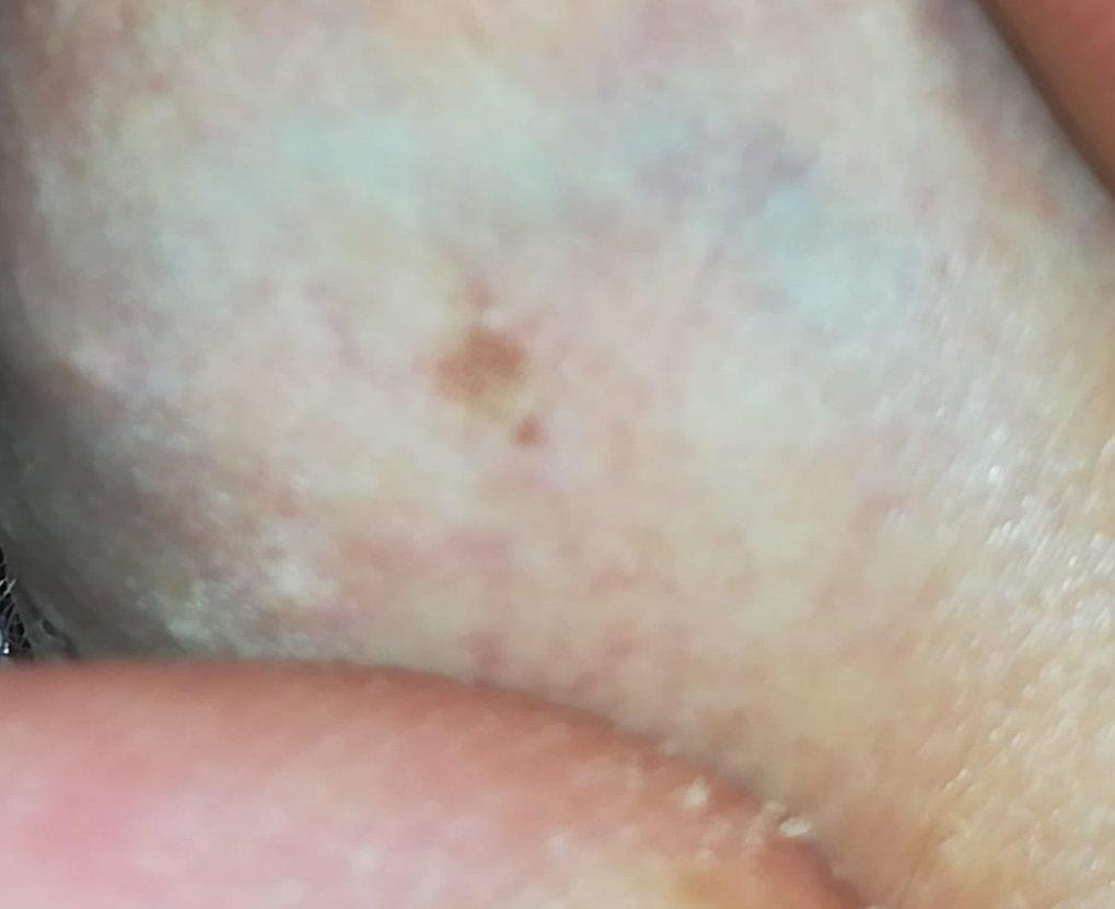 Macchie di pigmento sul pene perché, escrezione di lentiggini nei saloni di bellezza