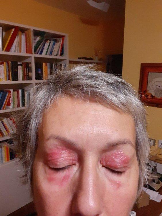 inizio dermatite 1 (Copia).jpg