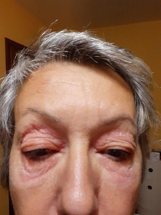 trasformazione in eczema 1 (Copia).jpg